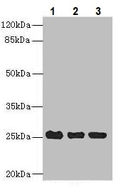Western blot - Anti-C10orf82 antibody (ab235530)