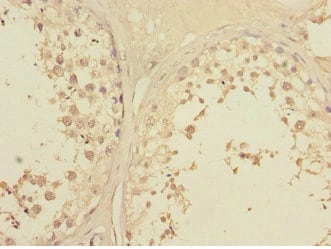 Immunohistochemistry (Formalin/PFA-fixed paraffin-embedded sections) - Anti-Lunatic Fringe antibody (ab235534)