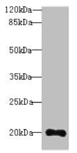 Western blot - Anti-TTC9C antibody (ab235537)