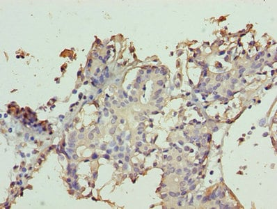 Immunohistochemistry (Formalin/PFA-fixed paraffin-embedded sections) - Anti-TTC9C antibody (ab235537)