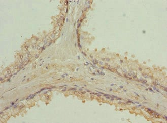 Immunohistochemistry (Formalin/PFA-fixed paraffin-embedded sections) - Anti-Rab9 antibody (ab235538)