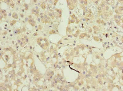 Immunohistochemistry (Formalin/PFA-fixed paraffin-embedded sections) - Anti-AP4B1 antibody (ab235539)