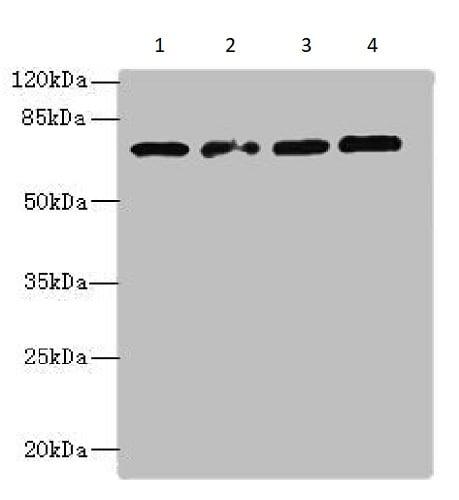 Western blot - Anti-TBC1D14 antibody (ab235544)