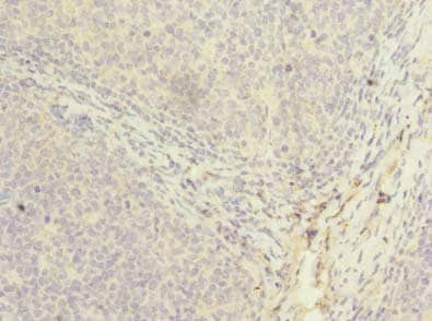 Immunohistochemistry (Formalin/PFA-fixed paraffin-embedded sections) - Anti-PPIH antibody (ab235595)