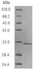 SDS-PAGE - Recombinant <em>E. coli </em> Aquaporin Z protein (Active) (ab235607)