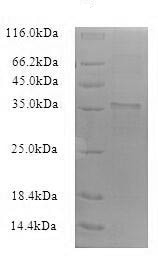 SDS-PAGE - Recombinant <em>B. subtilis</em> Uncharacterized protein YuaB (Active) (ab235612)