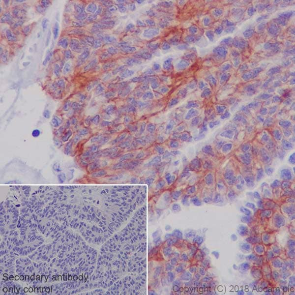 Immunohistochemistry (Formalin/PFA-fixed paraffin-embedded sections) - Anti-MRP4 antibody [EPR20403] - BSA and Azide free (ab235624)