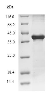 SDS-PAGE - Recombinant Rat Carboxypeptidase A protein (Tagged) (ab235686)