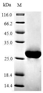 SDS-PAGE - Recombinant Mouse Bcl-2 protein (His tag) (ab235687)
