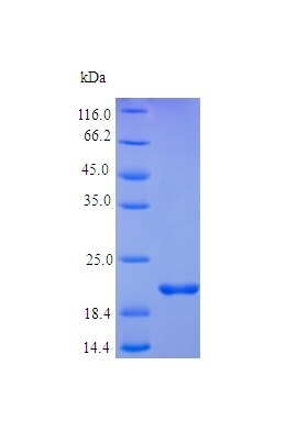 SDS-PAGE - Recombinant human TNF Receptor I protein (Active) (ab235703)