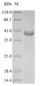 SDS-PAGE - Recombinant Cow GNAT2 protein (His tag) (ab235705)