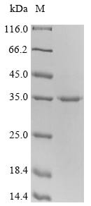 SDS-PAGE - Recombinant Mouse CTLA4 protein (Tagged) (ab235718)