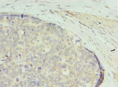 Immunohistochemistry (Formalin/PFA-fixed paraffin-embedded sections) - Anti-PGPL antibody (ab235771)