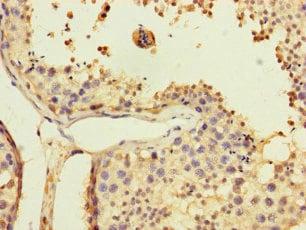 Immunohistochemistry (Formalin/PFA-fixed paraffin-embedded sections) - Anti-USP5 antibody (ab235772)