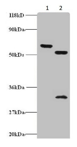 Western blot - Anti-ZNF384 antibody (ab235773)