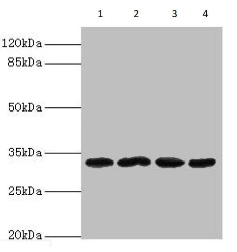 Western blot - Anti-METRNL antibody (ab235775)