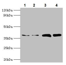 Western blot - Anti-TBCC antibody (ab235777)