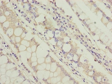 Immunohistochemistry (Formalin/PFA-fixed paraffin-embedded sections) - Anti-TCTA antibody (ab235781)