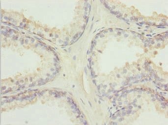 Immunohistochemistry (Formalin/PFA-fixed paraffin-embedded sections) - Anti-TM9SF1 antibody (ab235787)
