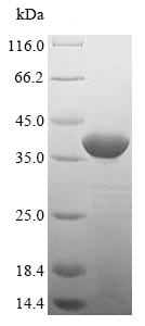 SDS-PAGE - Recombinant <em>S. cerevisiae</em> ndk protein (Tagged) (ab235793)