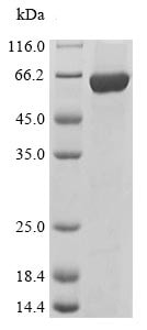 SDS-PAGE - Recombinant Mouse Lyn protein (Tagged) (ab235801)