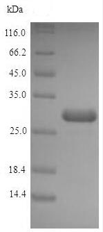 SDS-PAGE - Recombinant <em>E. coli </em> Acyl carrier protein (Tagged) (ab235802)
