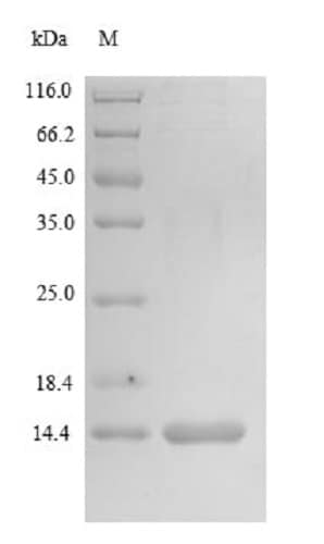 SDS-PAGE - Recombinant Human MGP protein (Tagged) (ab235811)