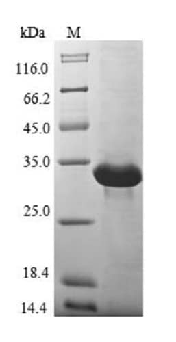 SDS-PAGE - Recombinant Human MT3 protein (Tagged) (ab235814)