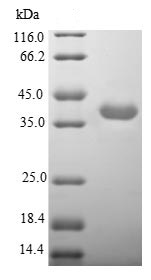SDS-PAGE - Recombinant Human Nicotinic Acetylcholine Receptor alpha 3/CHRNA3 protein (Tagged) (ab235815)