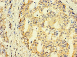 Immunohistochemistry (Formalin/PFA-fixed paraffin-embedded sections) - Anti-SYTL3 antibody (ab235834)