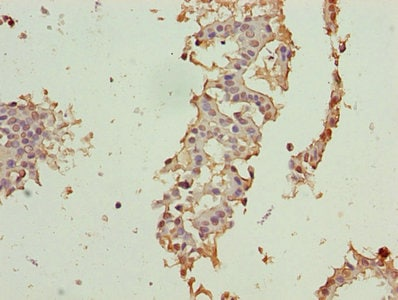 Immunohistochemistry (Formalin/PFA-fixed paraffin-embedded sections) - Anti-CRABP1 antibody (ab235838)