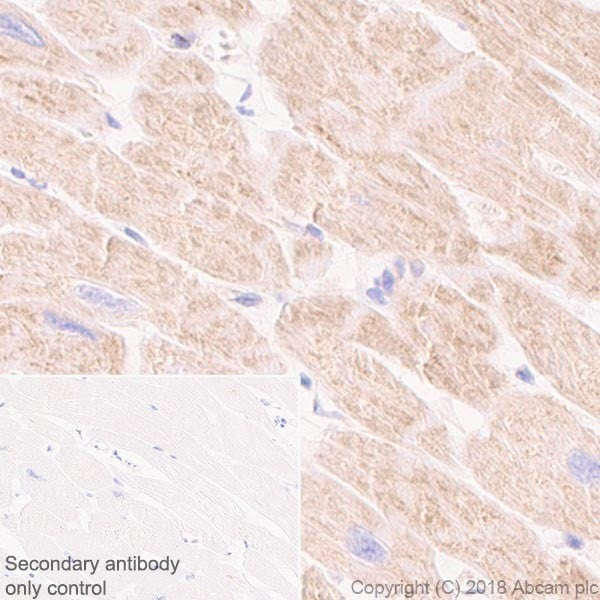 Immunohistochemistry (Formalin/PFA-fixed paraffin-embedded sections) - Anti-CPT1A antibody [EPR21843-71-2F] - BSA and Azide free (ab235841)