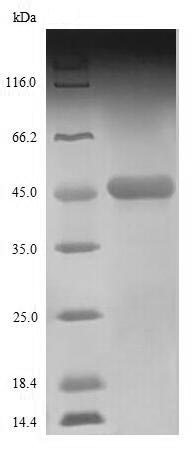 SDS-PAGE - Recombinant Nucleoprotein (Tagged) (ab235853)