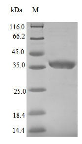 SDS-PAGE - Recombinant Nucleoprotein (His tag) (ab235868)