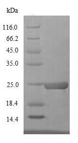 SDS-PAGE - Recombinant Miraculin protein (His tag) (ab235869)