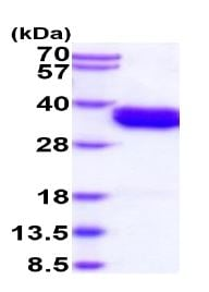 SDS-PAGE - Recombinant Human Bone marrow stromal cell antigen 1 protein (His tag) (ab235881)