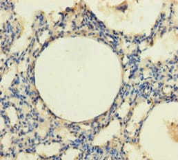 Immunohistochemistry (Formalin/PFA-fixed paraffin-embedded sections) - Anti-TRPM8 antibody (ab235890)