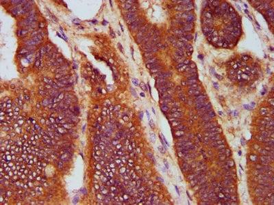 Immunohistochemistry (Formalin/PFA-fixed paraffin-embedded sections) - Anti-SOS1 antibody (ab235894)