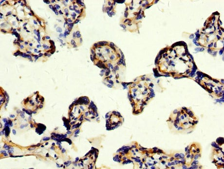 Immunohistochemistry (Formalin/PFA-fixed paraffin-embedded sections) - Anti-CD109 antibody (ab235896)