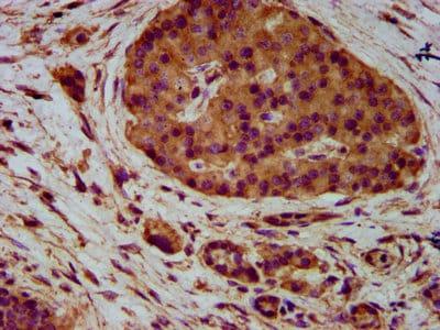 Immunohistochemistry (Formalin/PFA-fixed paraffin-embedded sections) - Anti-Nectin-4 antibody (ab235897)