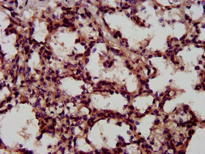 Immunohistochemistry (Formalin/PFA-fixed paraffin-embedded sections) - Anti-LIFR antibody (ab235908)