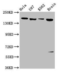 Western blot - Anti-LIFR antibody (ab235908)