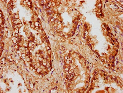 Immunohistochemistry (Formalin/PFA-fixed paraffin-embedded sections) - Anti-CCDC6 antibody (ab235912)