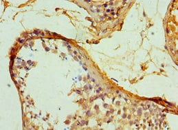 Immunohistochemistry (Formalin/PFA-fixed paraffin-embedded sections) - Anti-Hsp47 antibody (ab235920)