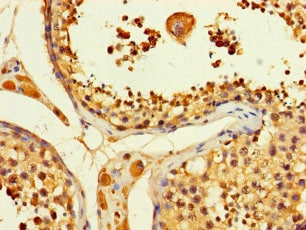 Immunohistochemistry (Formalin/PFA-fixed paraffin-embedded sections) - Anti-ATP citrate lyase antibody (ab235926)