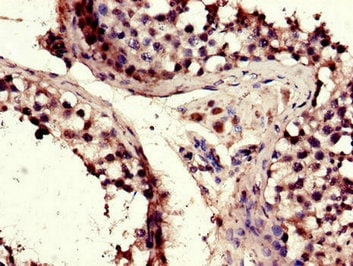 Immunohistochemistry (Formalin/PFA-fixed paraffin-embedded sections) - Anti-TACC3 antibody (ab235929)