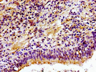 Immunohistochemistry (Formalin/PFA-fixed paraffin-embedded sections) - Anti-Choline kinase alpha antibody (ab235938)
