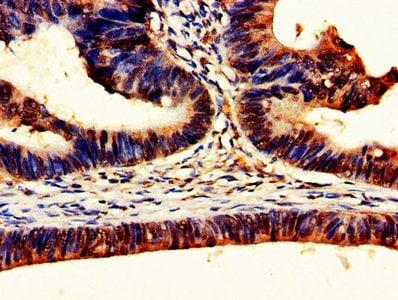 Immunohistochemistry (Formalin/PFA-fixed paraffin-embedded sections) - Anti-DDX3 antibody (ab235940)