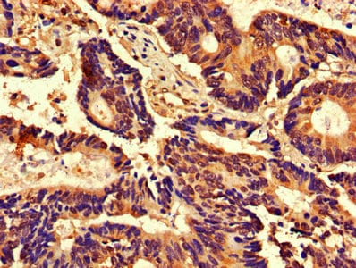 Immunohistochemistry (Formalin/PFA-fixed paraffin-embedded sections) - Anti-Cdk2 antibody (ab235941)