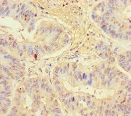 Immunohistochemistry (Formalin/PFA-fixed paraffin-embedded sections) - Anti-KLRG1 antibody (ab235951)